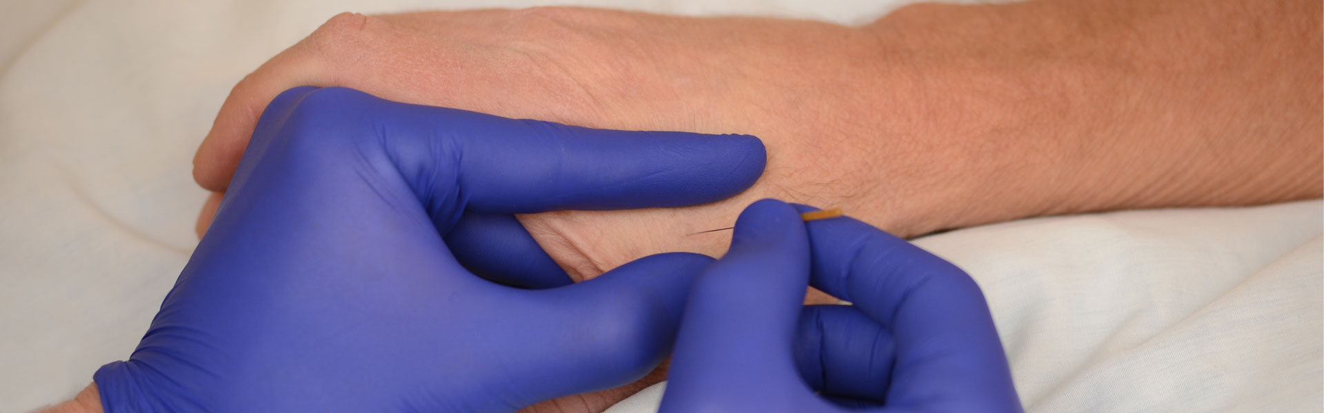 dry needling physical therapy